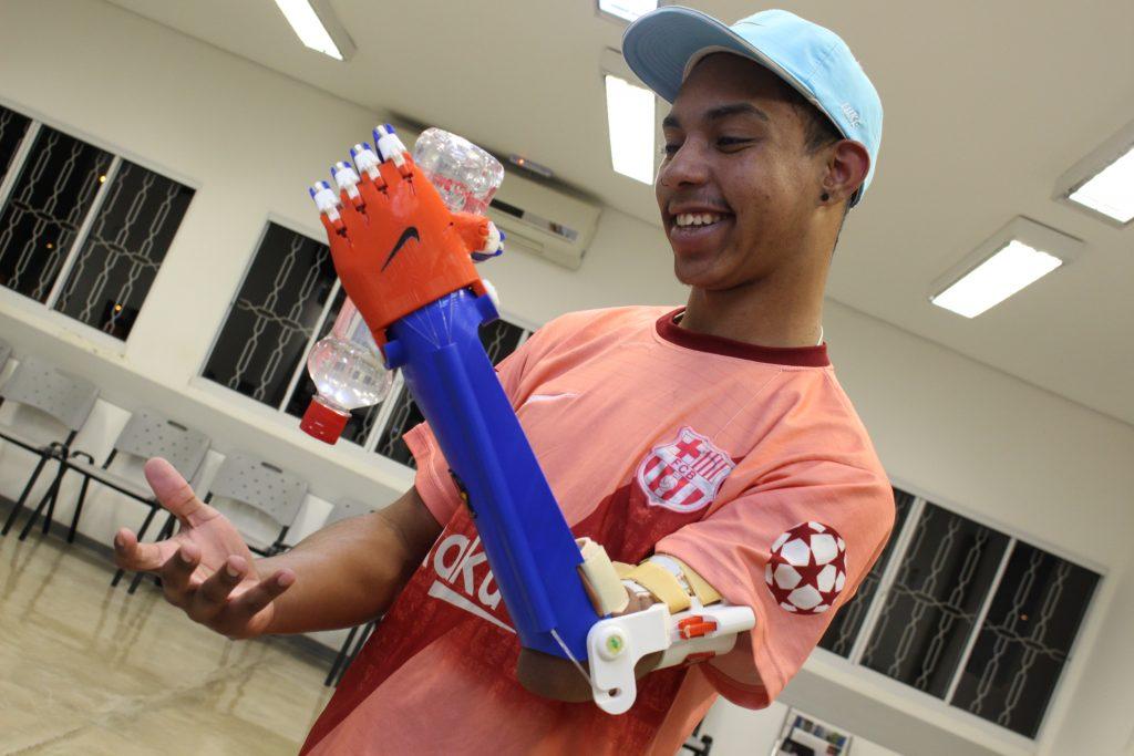 Alan Gomes testa sua prótese, confeccionada com tecnologia 3D. (Foto: Divulgação/SORRI-BAURU)