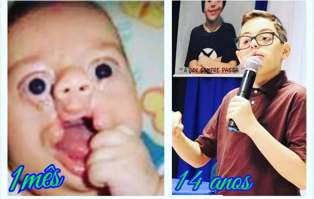 Centrinho de Bauru. Iarley ainda bebê e com 14 anos, após 18 cirurgias